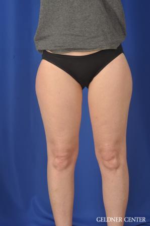 Liposuction: Patient 36 - Before Image 1