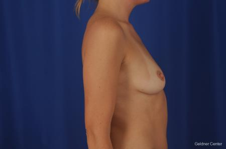Chicago Breast Augmentation 2374 - Before Image 2