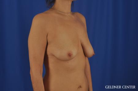 Chicago Breast Lift 11866 - Before Image 2