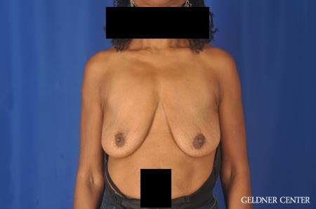 Breast Lift: Patient 22 - Before Image 1