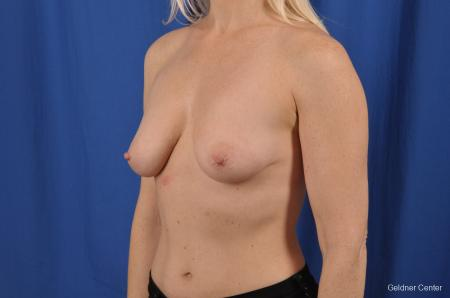 Breast Lift: Patient 19 - Before and After Image 4
