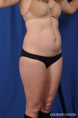 Liposuction: Patient 48 - Before Image 2