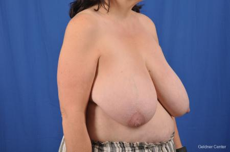 Breast Reduction: Patient 29 - Before Image 2