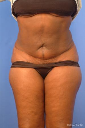 Vaser lipo patient 2540 before and after photos - After Image