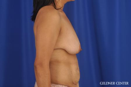 Breast Lift: Patient 49 - Before Image 3