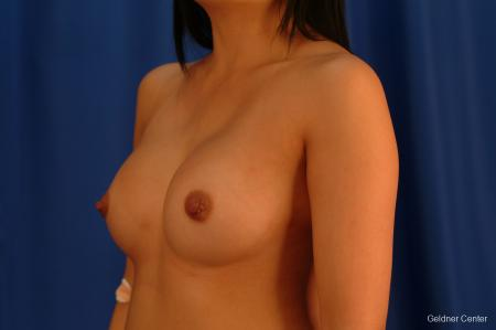 Underarm Breast Augmentation Streeterville, Chicago 2621 - After Image 4