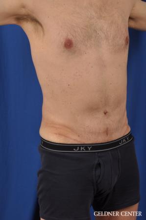 Abdominoplasty For Men: Patient 2 - After Image 2