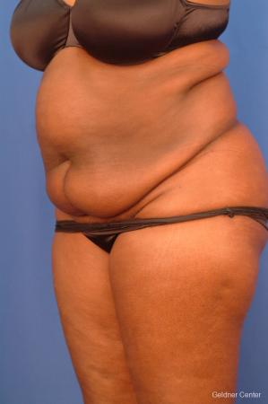 Liposuction: Patient 19 - Before and After Image 5