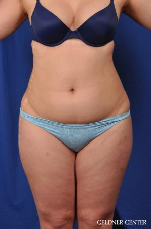 VASER® Lipo: Patient 9 - Before Image
