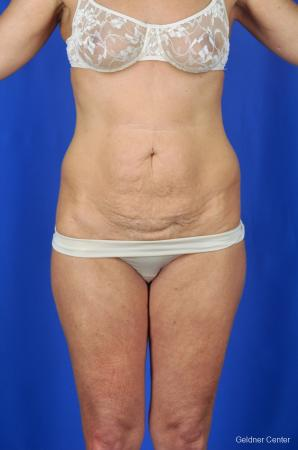 Tummy Tuck: Patient 2 - Before Image 1