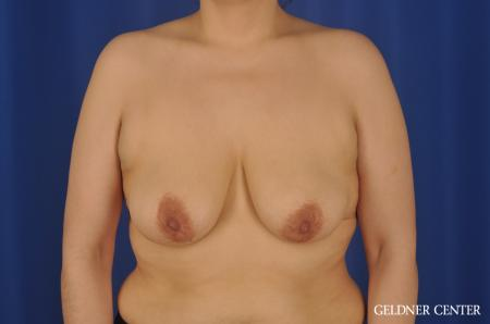 Chicago Breast Lift 8812 - Before Image 1