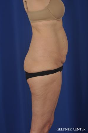 Liposuction: Patient 33 - Before 3