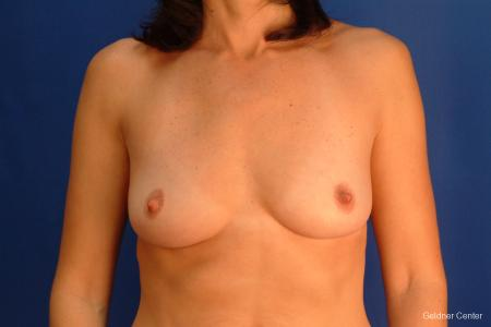 Breast Augmentation Streeterville, Chicago 2437 - Before Image 1