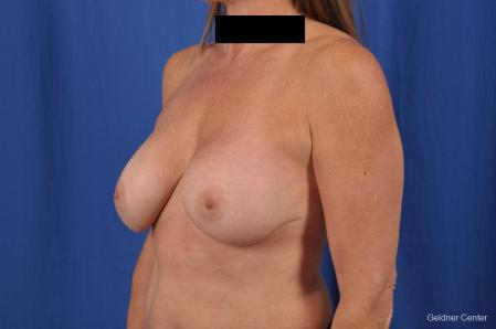 Breast Lift: Patient 43 - Before and After Image 5