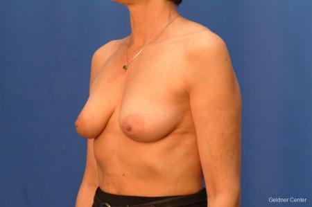 Breast Lift Hinsdale, Chicago 2509 - Before and After Image 4