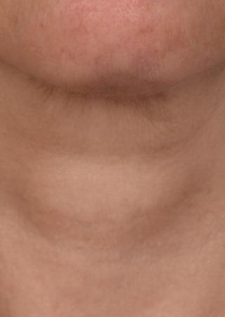 SkinPen®: Patient 9 - Before 1