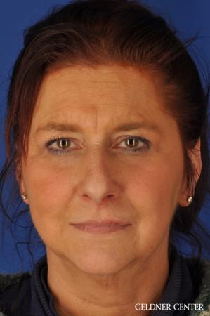 Brow Lift: Patient 4 - Before Image