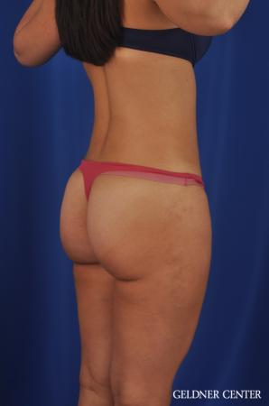 Liposuction: Patient 22 - After Image 4