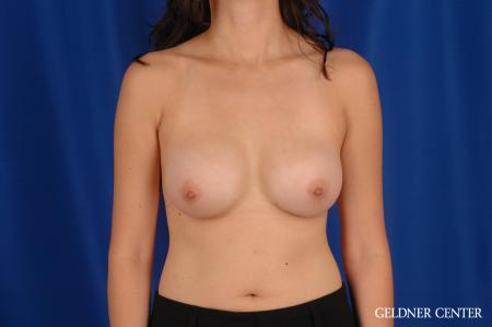 Breast Augmentation: Patient 177 - After Image 1