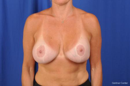 Breast Augmentation Hinsdale, Chicago 2391 -  After Image 1
