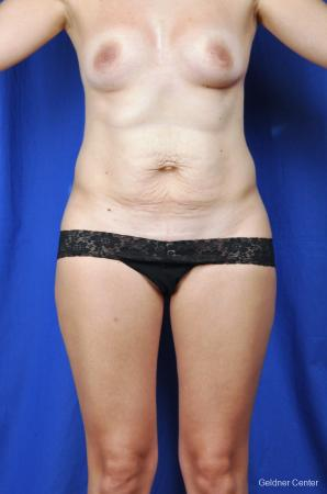 Tummy Tuck: Patient 5 - Before Image 1