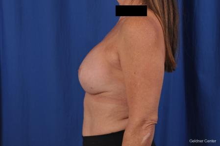 Breast Lift: Patient 43 - After Image 4