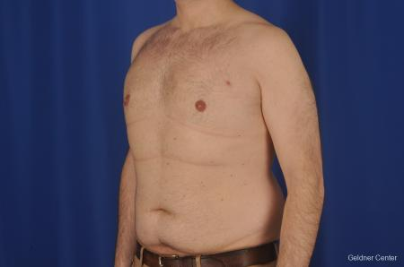 Gynecomastia: Patient 1 - After Image 4