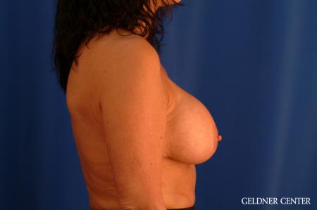 Chicago Breast Lift 2617 - Before Image 2