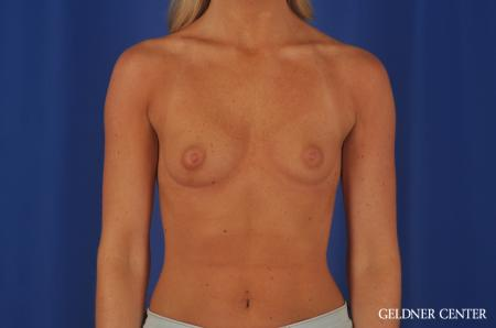 Chicago Breast Augmentation 4292 - Before 1