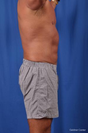 Liposuction For Men: Patient 5 - After 3
