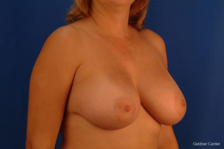 Chicago Breast Augmentation 2532 -  After Image 3