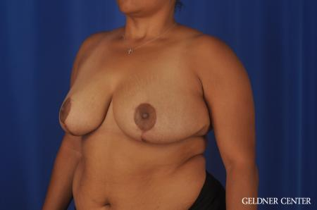 Breast Reduction Lake Shore Dr, Chicago 9099 -  After 4