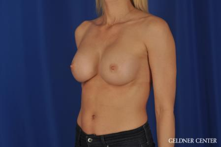 Breast Augmentation: Patient 168 - After Image 4