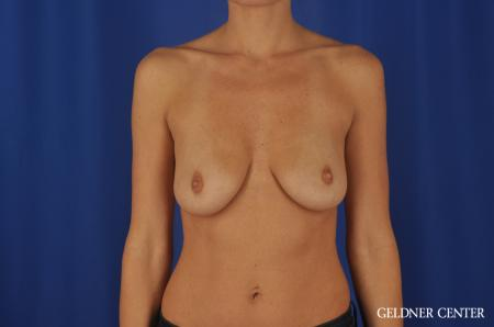 Chicago Breast Augmentation 5476 - Before Image 1