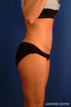 Tummy Tuck: Patient 34 - After Image 3