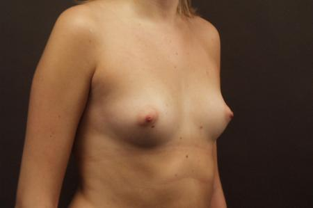 Chicago Breast Augmentation 2545 - Before and After Image 2