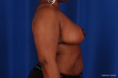 Breast Reduction Hinsdale, Chicago 2334 -  After Image 2