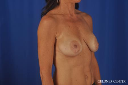 Chicago Complex Breast Augmentation 5471 - Before Image 2