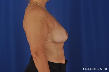 Breast Reduction Lake Shore Dr, Chicago 3223 -  After Image 2