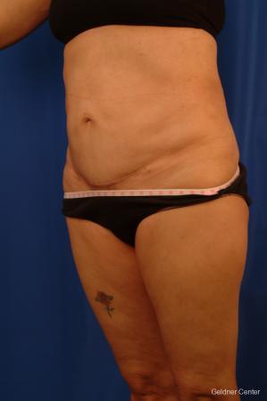 Liposuction: Patient 18 - After 4