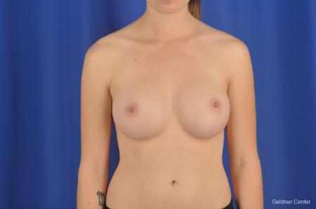 Chicago Breast Augmentation 2304 -  After Image 1