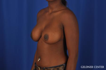 Breast Augmentation Hinsdale, Chicago 4001 -  After Image 4