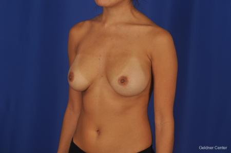 Breast Augmentation Streeterville, Chicago 2298 - Before and After Image 4