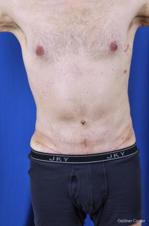 Liposuction-for-men: Patient 8 - After Image