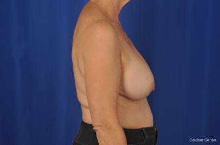 Breast Lift Hinsdale, Chicago 2058 - Before Image 2
