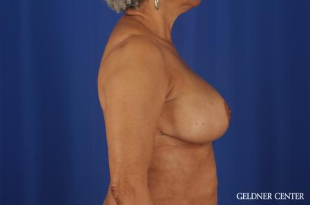 Breast Reduction Streeterville, Chicago 6650 -  After 3