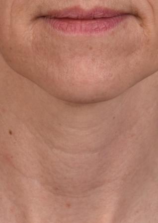 SkinPen®: Patient 11 - After 1