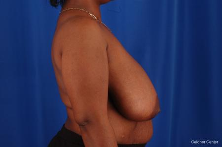 Breast Reduction Hinsdale, Chicago 2334 - Before Image 2