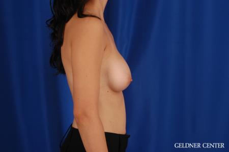 Breast Augmentation: Patient 177 - After Image 3
