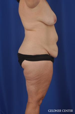 Abdominoplasty Patient 1 before and after photos - Before Image 3
